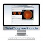 Teleopthamology